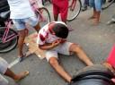 adolescente-sangra-pelos-ouvidos-e-nariz-ap-grave-acidente02600066704aaeaa47f83625b386f371