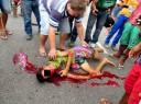 adolescente-sangra-pelos-ouvidos-e-nariz-ap-grave-acidente9fa2b88f0e186fd442f14cbb94a835b4